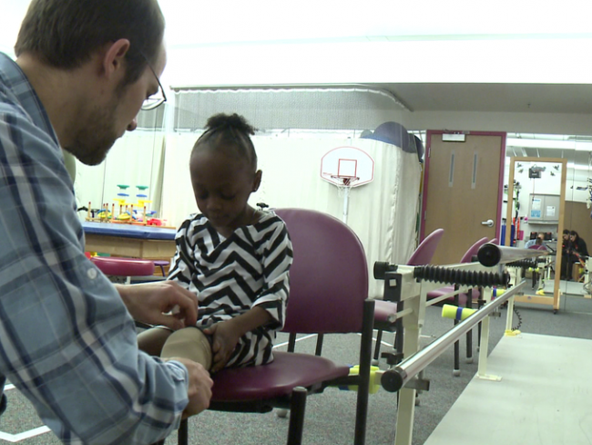 Shriners hospital helps girl get prosthetic leg