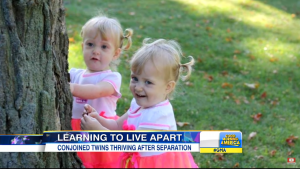 After parents refuse abortion, conjoined twins undergo successful separation operation