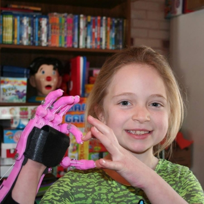 e-NABLE 3D printed hands help children