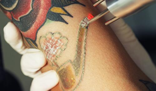 Tattoo removal changes lives of LA inmates