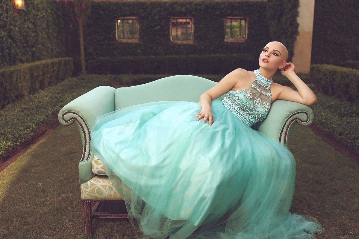 Teen begins modeling after losing hair to chemo